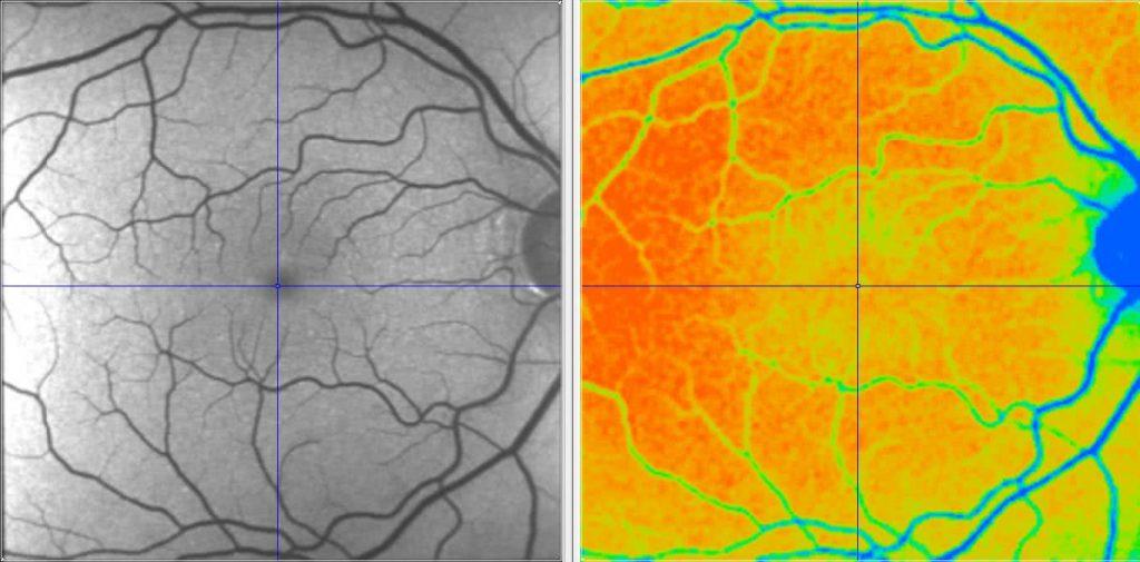 Fundus Photo der Retina neben der Darstellung der Fluoreszenzlebensdauer