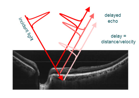 OCT image of the retina with explanation of how it works