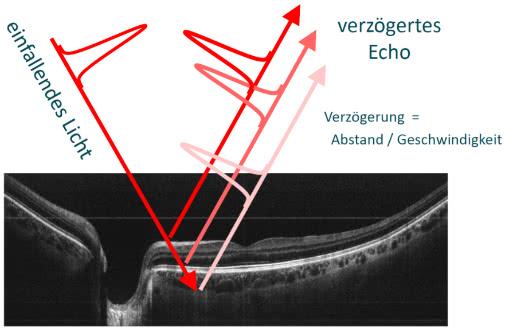 OCT Bild der Retina mit Erklärung zur Funktionsweise