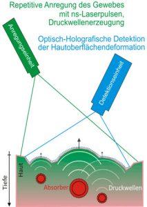 Schematische Darstellung der Funktionsweise der photoakustischen Tomographie (PAT)