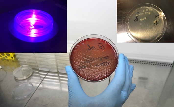 Bacteria are irradiated with light to initiate photocatalytic processes. Subsequently, the vitality of the bacteria is examined.