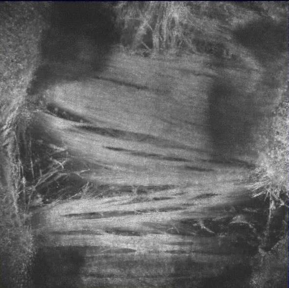 En face Bild einer Trachea