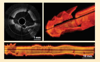 Beispielbilder intravaskulärer OCT