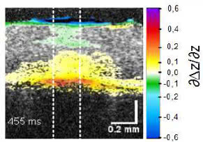 thermoelastische Expansion der Retina