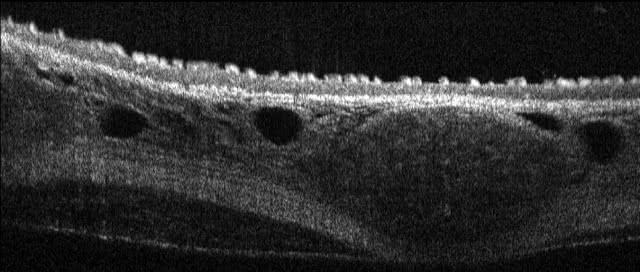 B-Scan einer Trachea